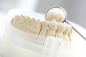 Major Dental Treatment | Rye Family Dental Care